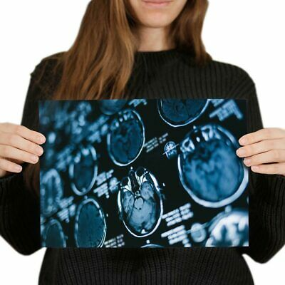 MRI Brain Scan X-Ray Images Poster 59.4X42cm280gsm #21826 A2