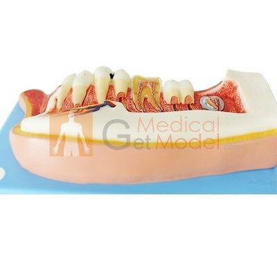 Dental Model Lower Jaw Of 12 Year Old Child Medical Anatomy Human