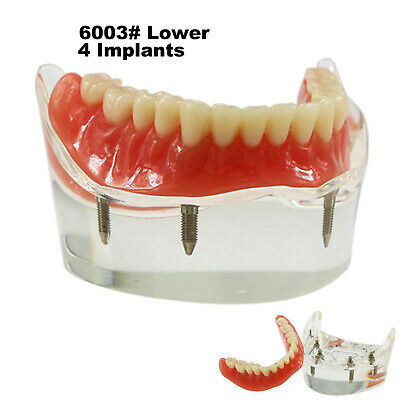 Dental Lower Inferior Teeth Model Overdenture 4 Implants Demo Model 6002 02