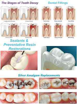 Dental Poster: Sealants and preventative resin restorations 24''x36''