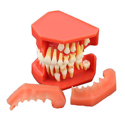 Dental Model Deciduous Teeth Permanent Tooth Alternate Demonstration 4006 01