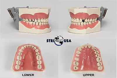 Dental Typodont Model 860 Prep Teeth Model Fits Columbia Brand Removable  Teeth