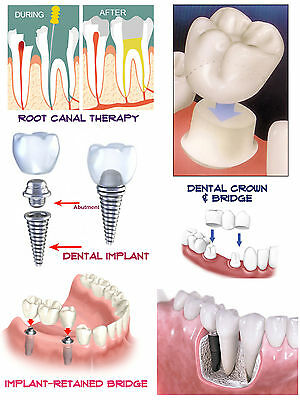 Set of FIVE -5- LARGE Dental Education & Informational Posters