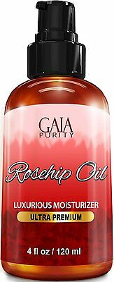 Rosehip Oil, Large 4oz - All Natural Best Moisturizer for Face Hair & Body