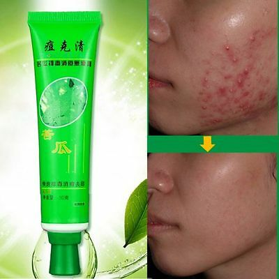 Women Face Care Mask Cream Remove-Acne Scar Blemish Stretch Marks Whitening Hot