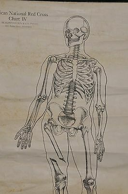 Antique1910 Anatomical Chart Medical Illustration Fracture & Dislocation