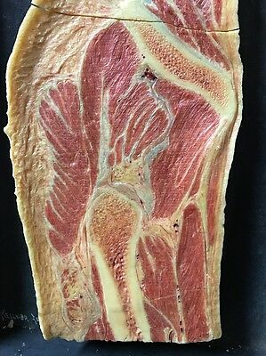 Antique Cross Section of Hip Wax Moulage Showing Femur Muscles Anatomical Model