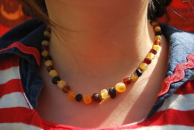 Natural Raw Baltic Amber Baby Necklace polished cognac color huge beads