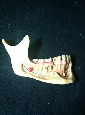 Antique Vintage Easton Dental Supply Anatomical Model Human Jaw And Teeth