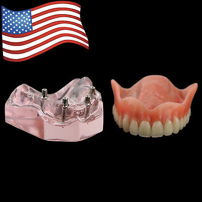 Dental Model Overdenture Superior With 4 Implants Demo Teeth Model 6001 Pink USA
