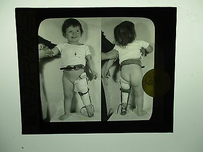 Antique 1930s Medical Oddities Glass Slide #681