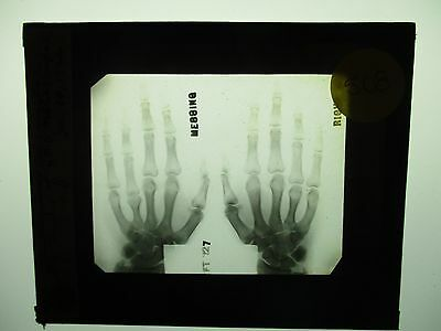 Antique 1930s Medical Oddities Glass Slide #508