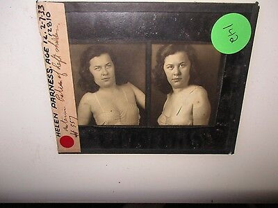Antique 1930s Medical Oddities Glass Slide #142