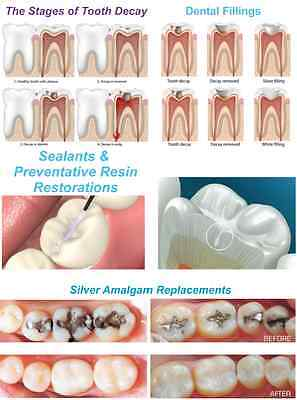 Dental Education Poster: Sealants and preventative resin restorations 18''x24''