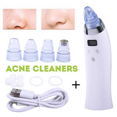 Blackhead Vacuum Acne Cleaner Pore Remover Electric Skin Facial Cleanser Care UK