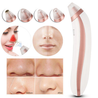 Electric Facial Pore Suction Spot Cleaner Blackhead Removal Acne Pimple Cleaner*