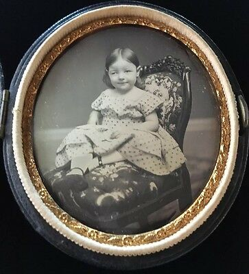 Medical Oddity Lazy Eye Gorgeous Girl Child 1/9 Case Daguerreotype Photo D110