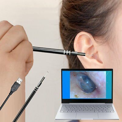 Health Care Tool Ear Pick Wax Remover Cleaner scope Endoscope windows PC USB XN