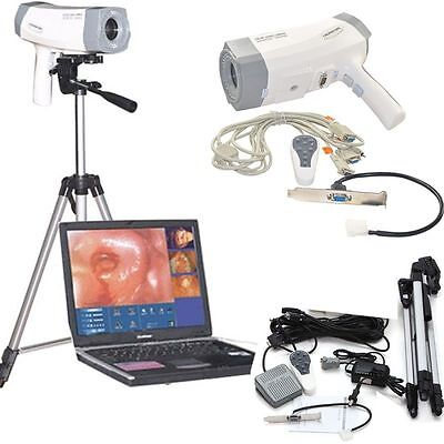 New Medical Software Digital Video Electronic Colposcope SONY Camera Gynaecology