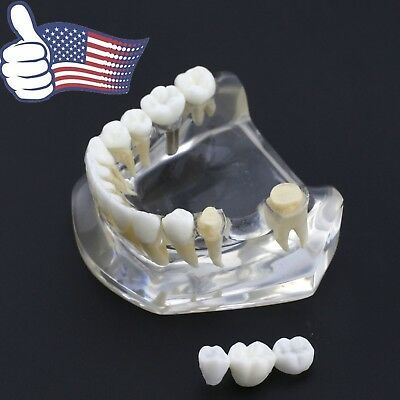USA Dental Implant Teeth Model Acrylic Inferior Lower Jaw with Bridge Crown 2010