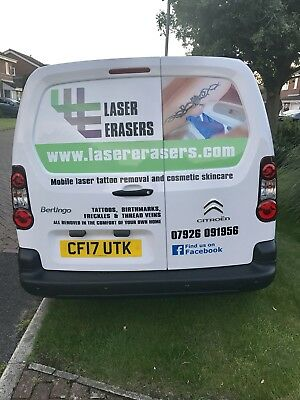 Mobile Laser Tattoo Removal business Northwest