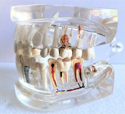 Clear Full size Human Jaw with Teeth – Model #2861  - FREE SHIPPING -