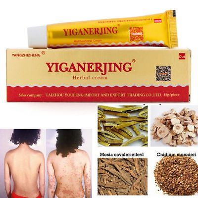 Chinese Herbal Ointment Psoriasis Dermatitis Eczema Itch Skin Treatment Cream nh