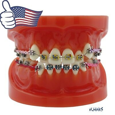 USA Dental Orthodontic Teeth Model with Brackets Tubes Chains Ties Archwire 3005