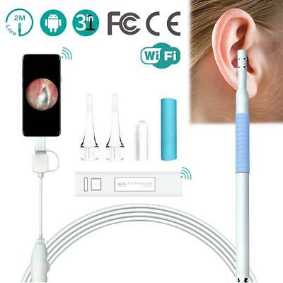 WIFI Visual Endoscope for Children USB Ear Otoscope Cleaning Tool with Camera
