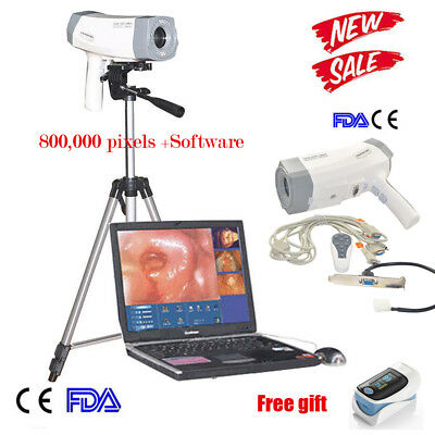 Portable Gynaecology Video Electronic Colposcope Electronic Sony Camera  Tripod