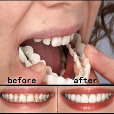 Teeth Whitening Snap On Instant Smile Comfort Fit Flex Perfect Smile Veneers HM
