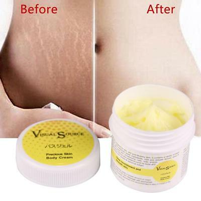 Smooth Skin Repair Cream For Stretch Marks Scar Removal Body Skin Repair Cream