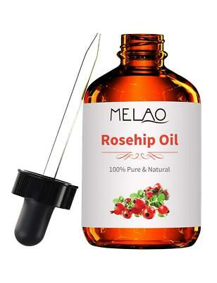 Organic Rosehip Seed Oil | 4oz | Imported From Chile | 100% Pure | Cold Pressed
