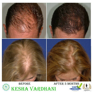 THE BEST HAIR LOSS TREATMENT FOR MEN AND WOMEN REGROW HAIR REGROWTH ✅ Natural!!!