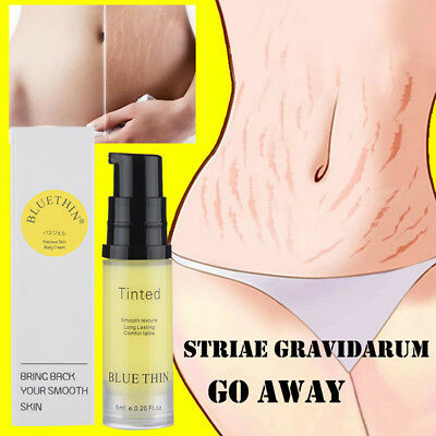 Cream Remove Scar Stretch Marks Care Postpartum Maternity Skin Body Repair