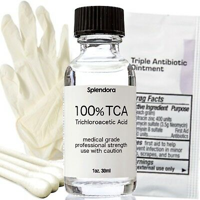 100% T C A Skin Peel Acid (1 oz.) Remove Tattoo's, Skin Tags, Age & White Spots