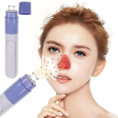 Electronic Blackhead Acne Remover Vacuum Machine Dermabrasion Face Pore Cleaner