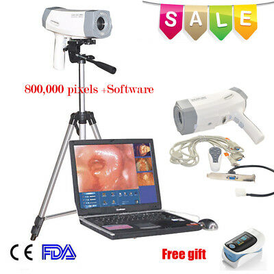 Digital electronic Video Colposcope SONY 800,000 pixels &Soft​ware &Tripod US