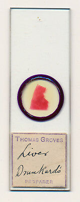 "Antique Microscope Slide ""Liver Drunkard's"" by Thomas Groves"