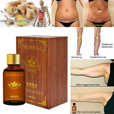 100% PURE Plant Therapy Lymphatic Drainage Ginger Oil