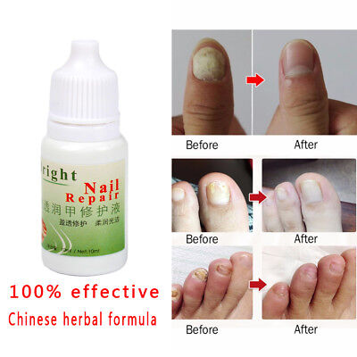NAIL FUNGUS FUNGAL Infection Treatment Rechargeable Laser Device