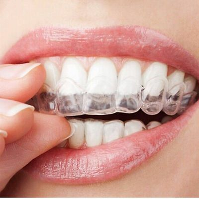 NEW Teeth Whitening Kit Mouth Trays Custom Mould Thermo Plastic Guards AU