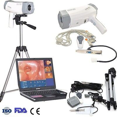 Digital electronic colposcope SONY 800,000 pixels  +Soft​ware Vaginoscope CE