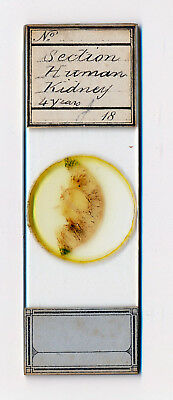 "Antique Microscope Slide ""Section Human Kidney 4 Years"" by Unknown"