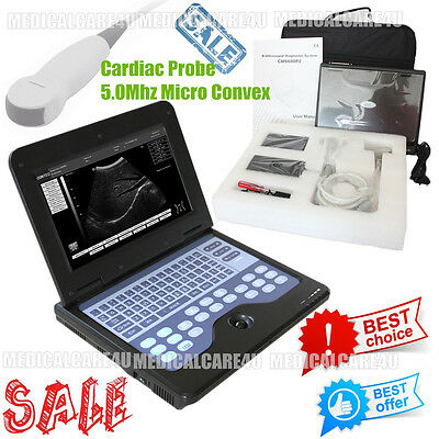 LCD Notebook Ultrasound Scanner Laptop Machine With 5.0Mhz Micro Convex Probe