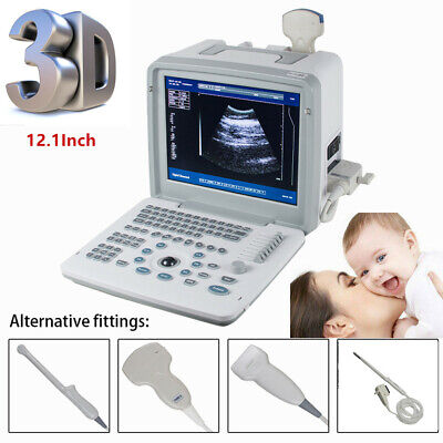12Inch Digital Ultrasound Scanner Machine+ convex/linear/Transvaginal/Rectal DHL