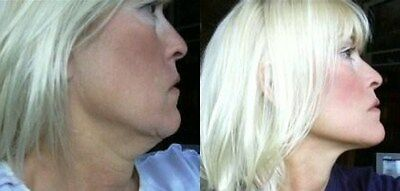 Instant Face Lift, Neck lift and Eye lift Tapes Refill 40 piece! refill Facelift