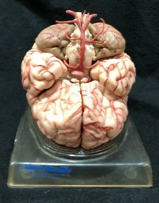 Somso BS23 Brain Model with Arteries Anatomical Model BS 23