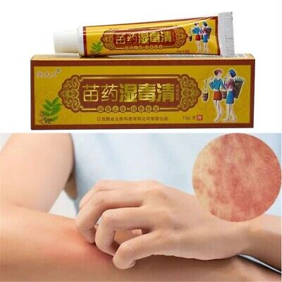 Natural Chinese Herbs Anti Bacterial Itch Fungus Ointment Skin Body Care Cream