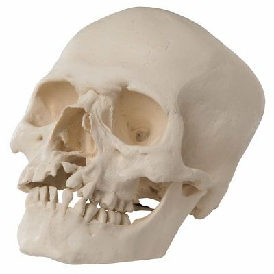 3B Scientific A29/3 Human Skull Anatomical Model with Cleft Jaw & Palate A 29/3
